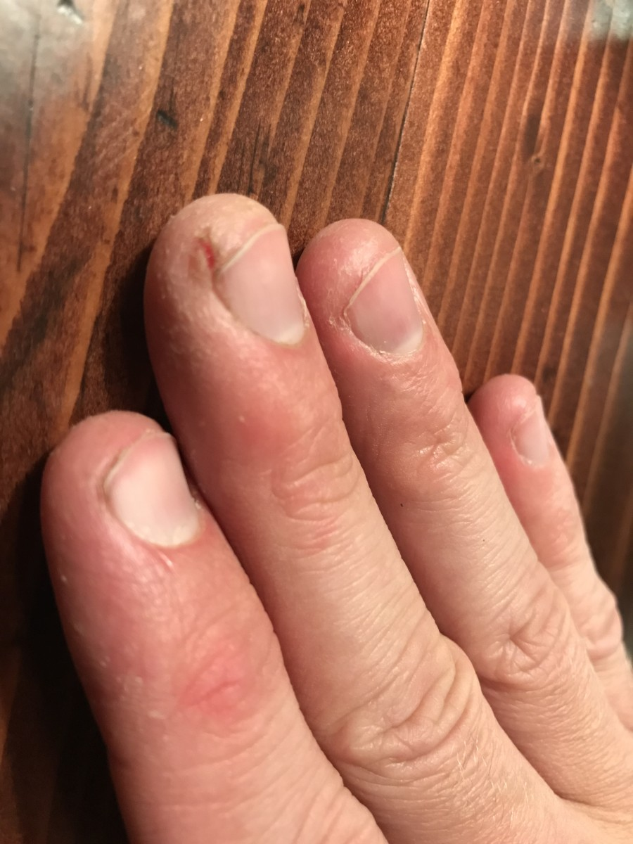 Fissures can occur anywhere on the fingers but are common at the tips of the nail beds.