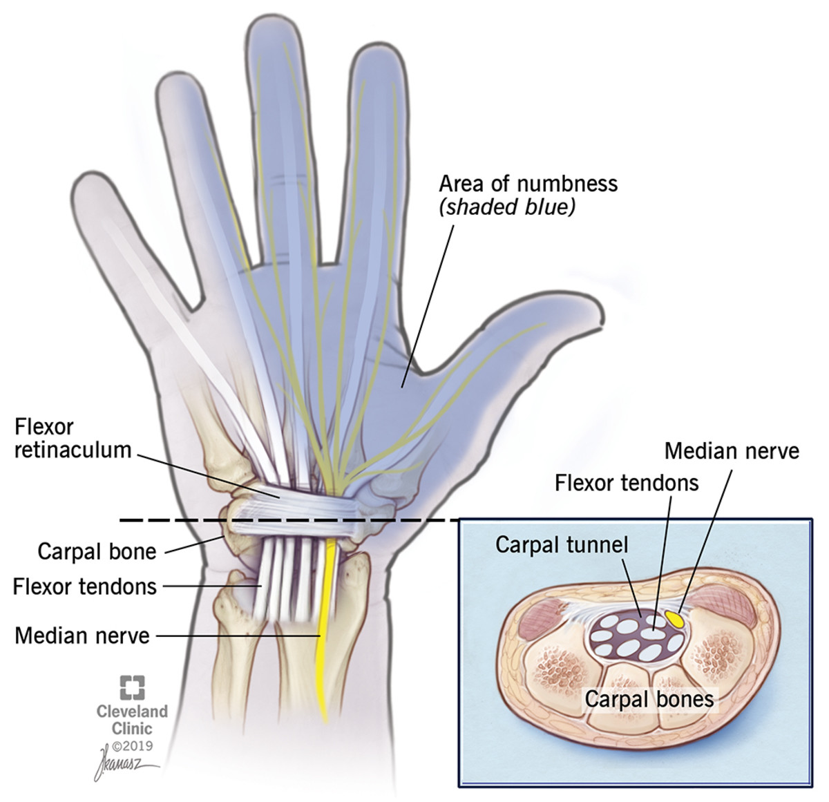 facts-concerning-carpal-tunnel-syndrome