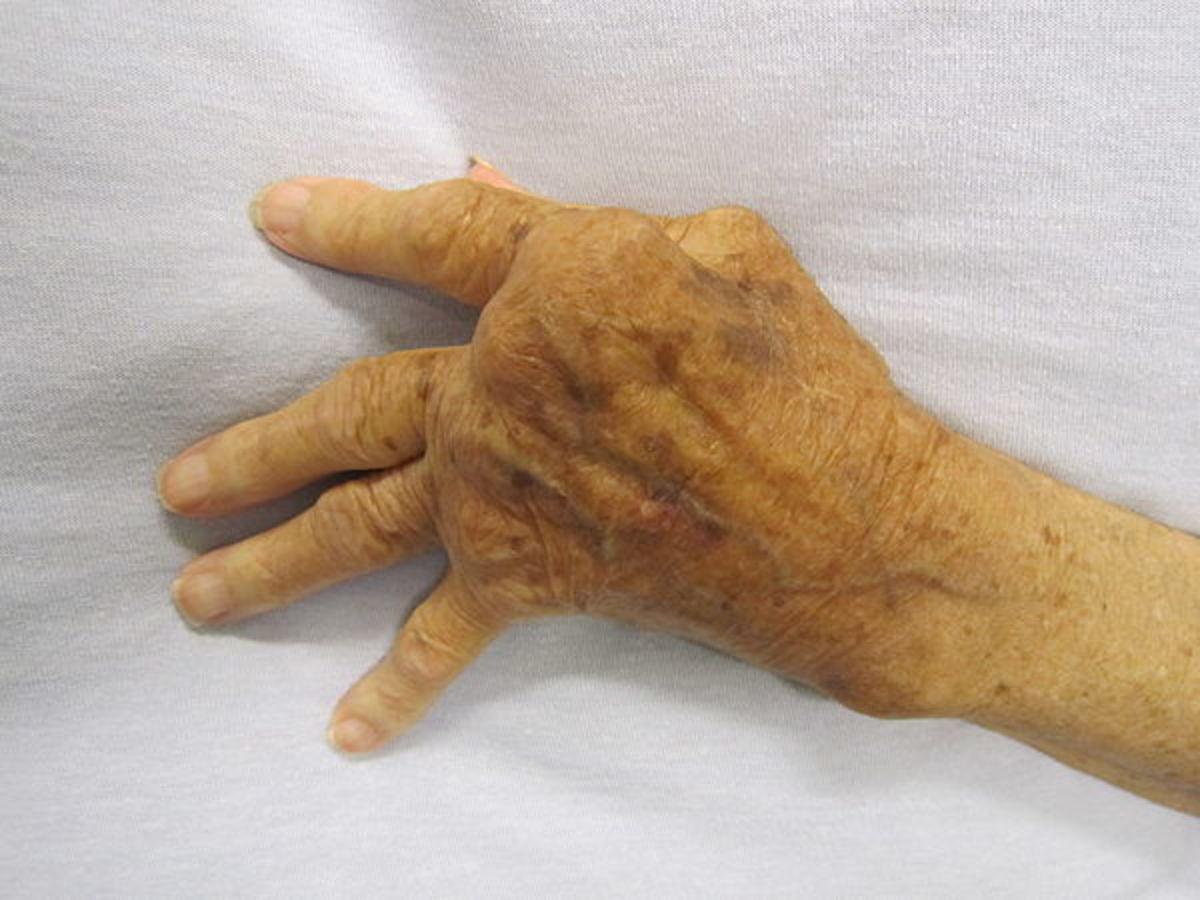Effect of Rheumatoid Arthritis
