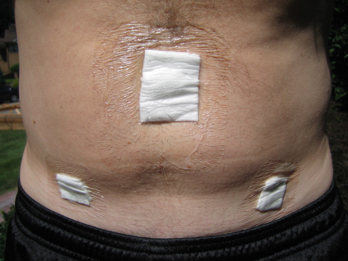 You can see bandages (gauze covered with waterproof plastic tape) where the three incisions were made: directly above the belly button and on the right and left side, just below the pant line.  There is some residual swelling of the abdomen.  The res