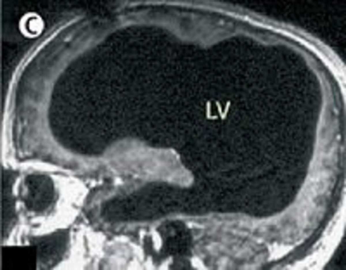 The image of a brain with massive damage whose owner has normal language function  Credit: The Wikipedia