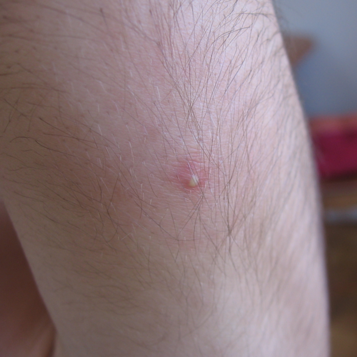 Acne vulgaris, in this case on the arm, can also appear on the thighs or buttocks.