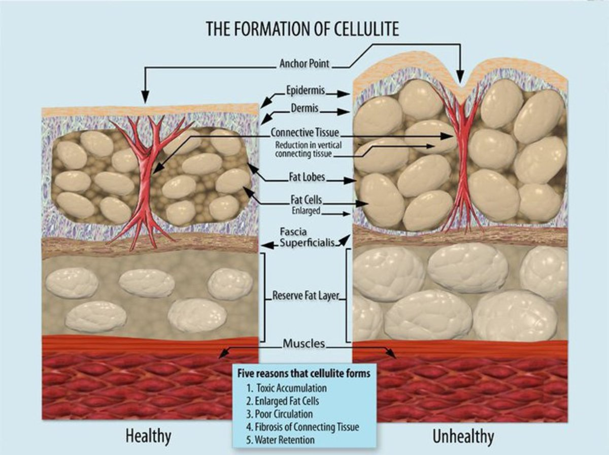 9 Ways to Help Reduce Cellulite