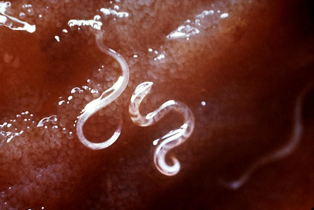 Pinworms and Other Parasites in Human Beings (With Pictures)