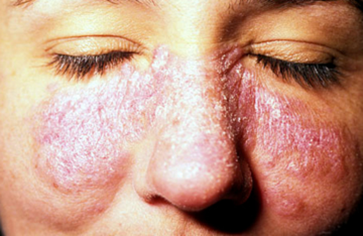 The rash is typically on the cheeks and across the nose and affects approximately 15% of Lupus patients. Web MD