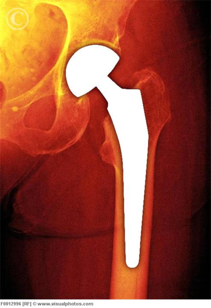 a-survivors-guide-to-total-hip-replacement