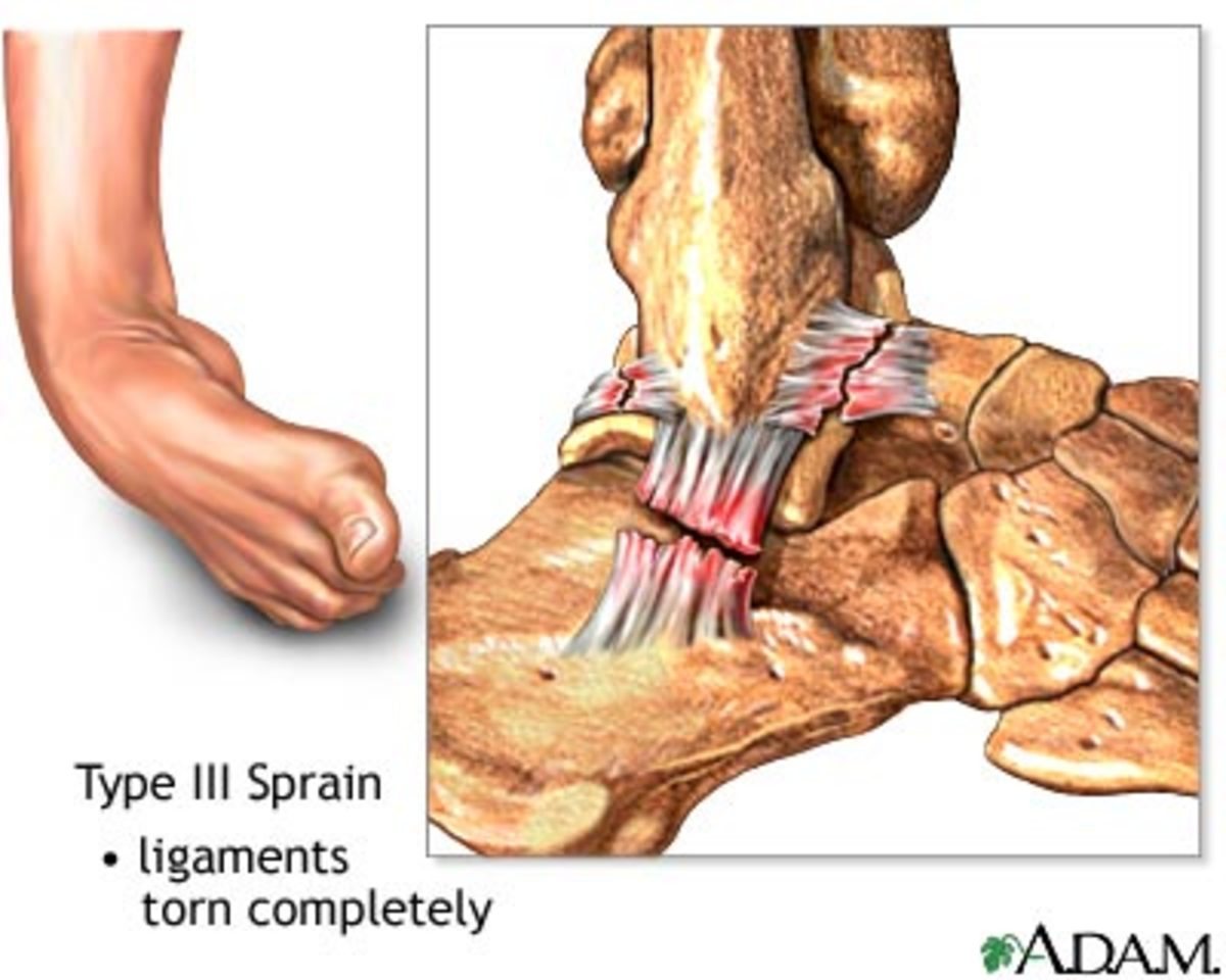 torn-ligament-in-my-ankle