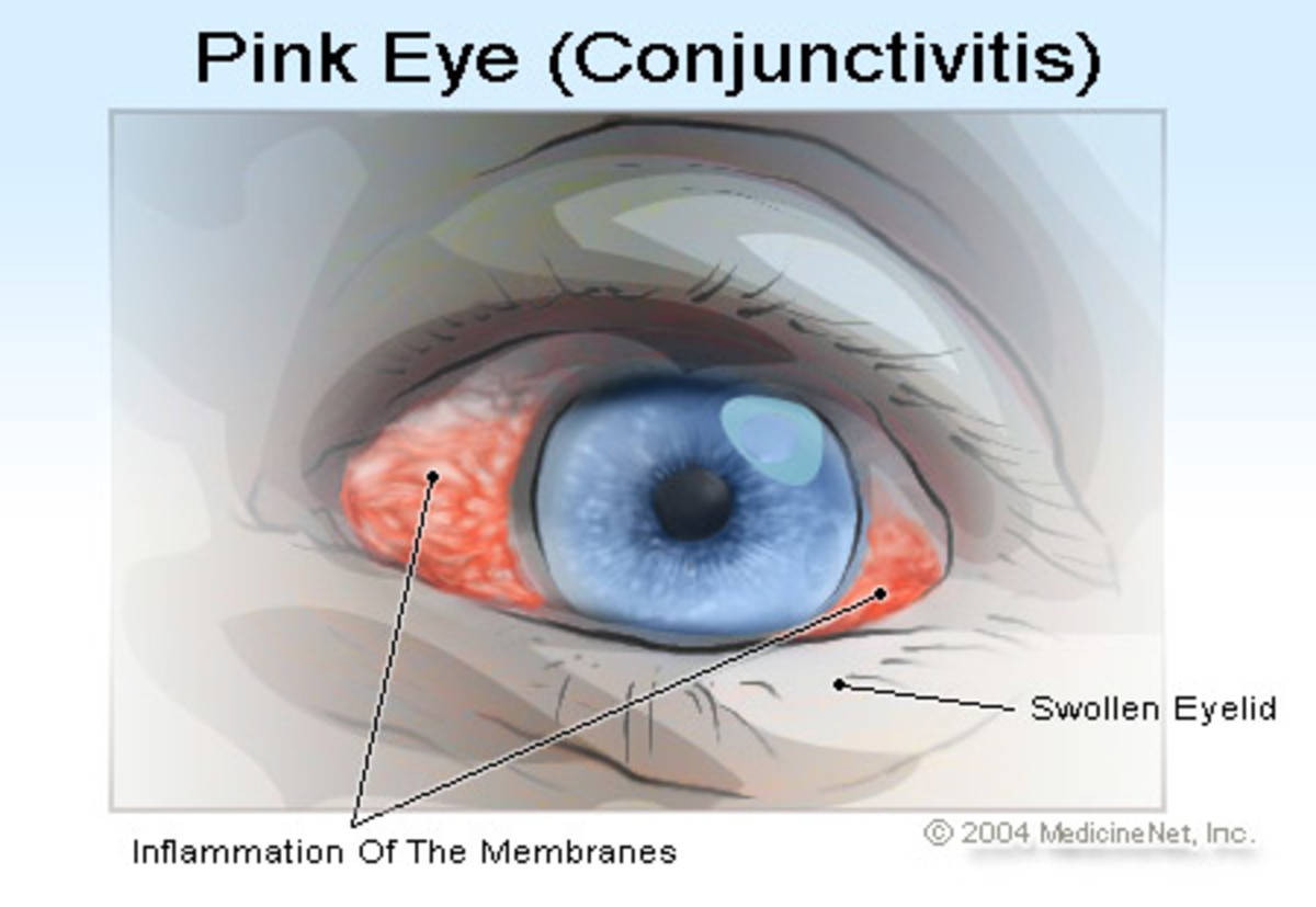 Pink eye or conjuctivitis Pink eye is the inflammation of the outermost