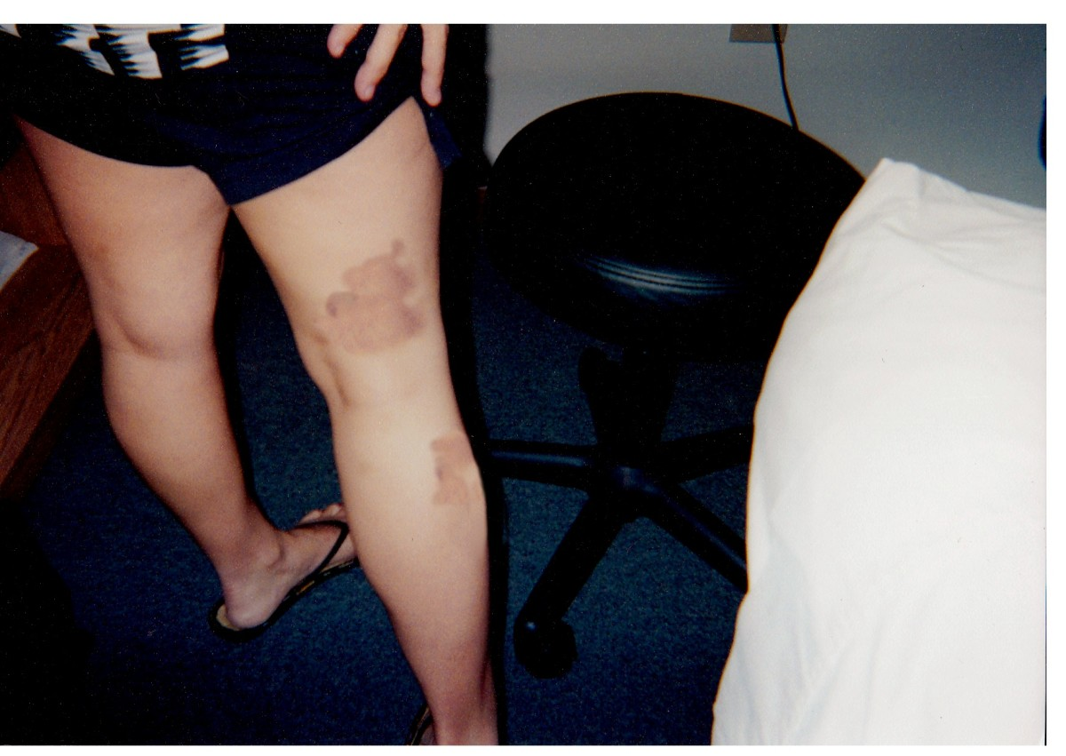 These were the pictures the solicitor didn't take for court. These were not from the hospital insident.