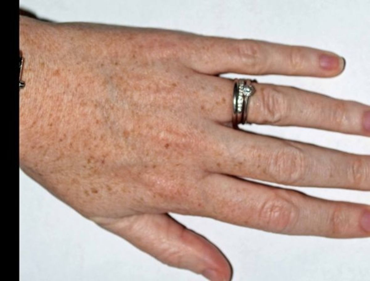 Age spots on hand