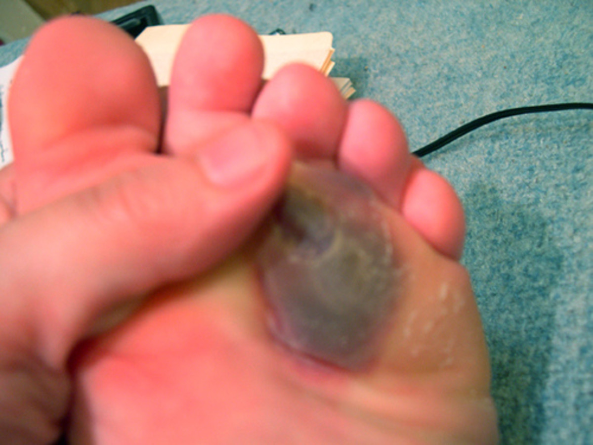 Honestly, this is one of the less gross pictures I found. My blister extended over a larger surface near the arch of my foot.