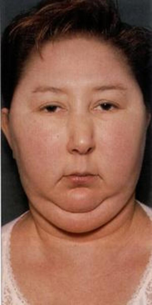 Patients may have increased adipose tissue in the face (moon facies), upper back at the base of the neck (buffalo hump), and above the clavicles (supraclavicular fat pads).