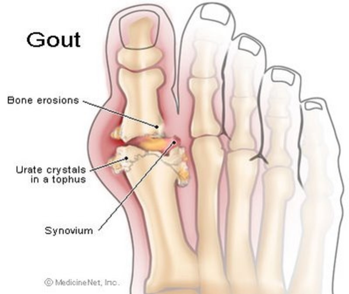 Living With Gout: A Lesson in Self Discipline