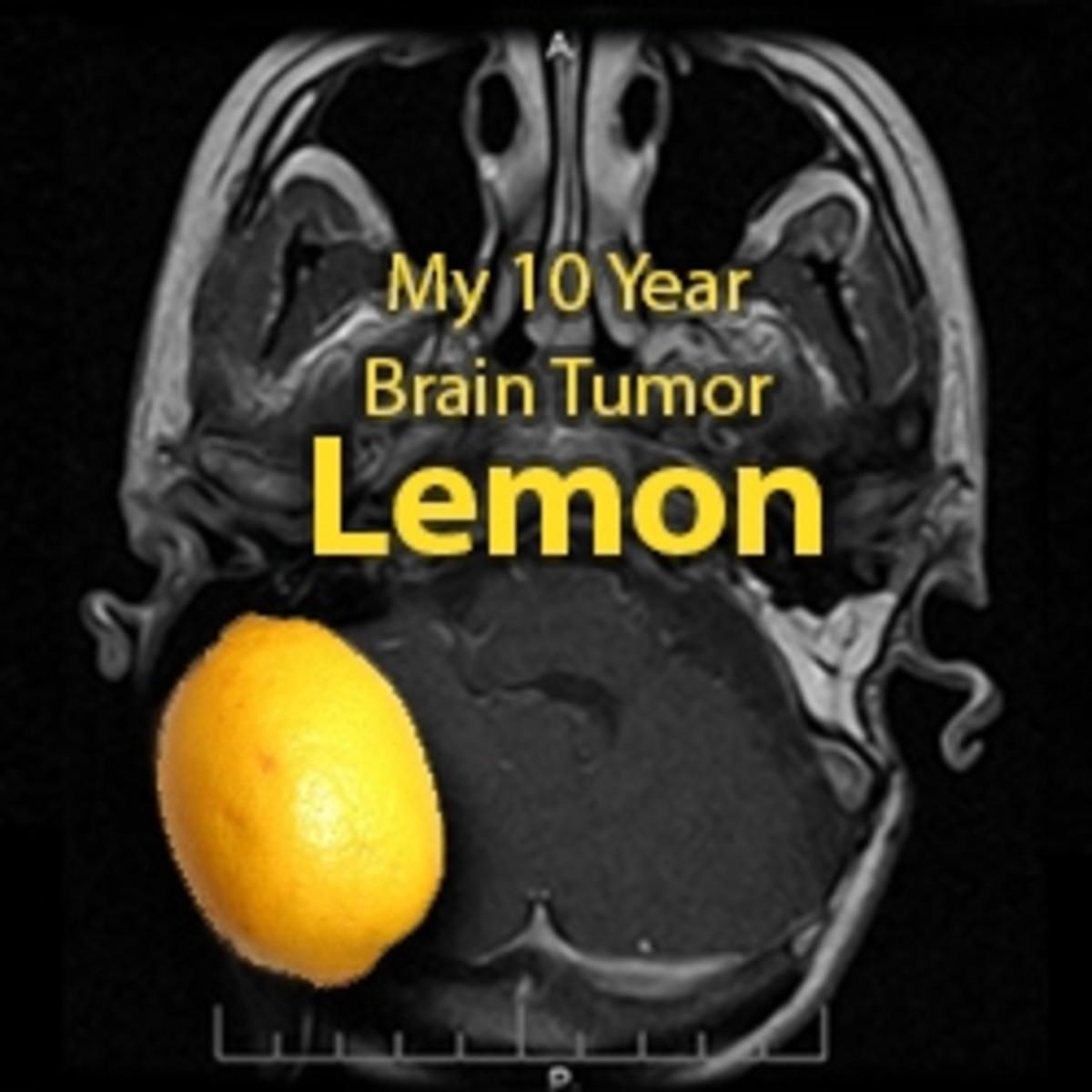 One Brain Tumor Survivor's Story