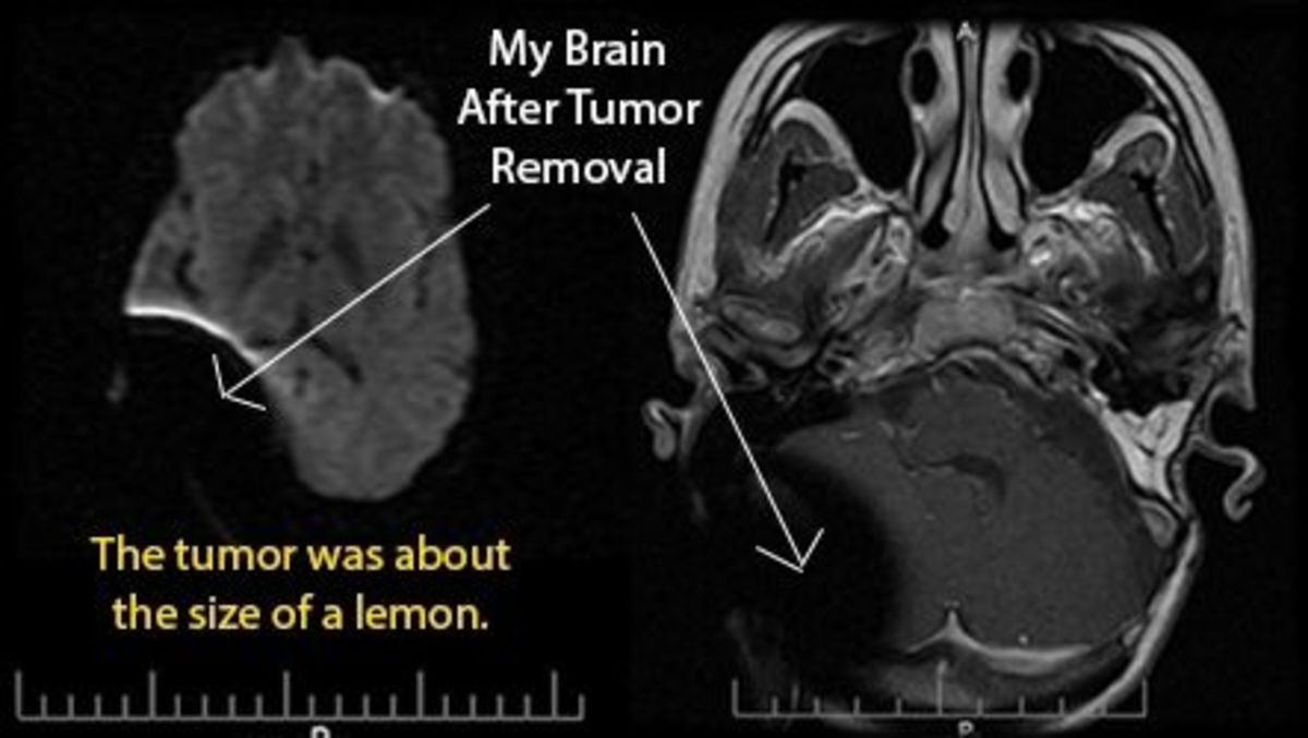 Lemon Sized Brain Tumor MRI After Removal