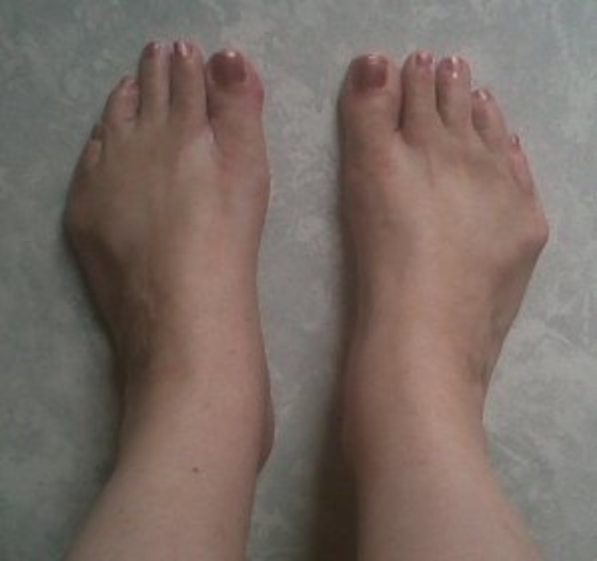 Flat, weird-looking feet, but so what, thank God I can walk and run...