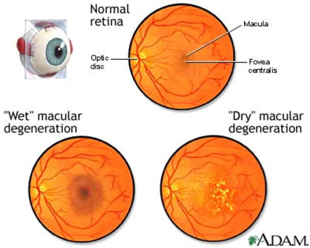 Protection Against Macular Degeneration