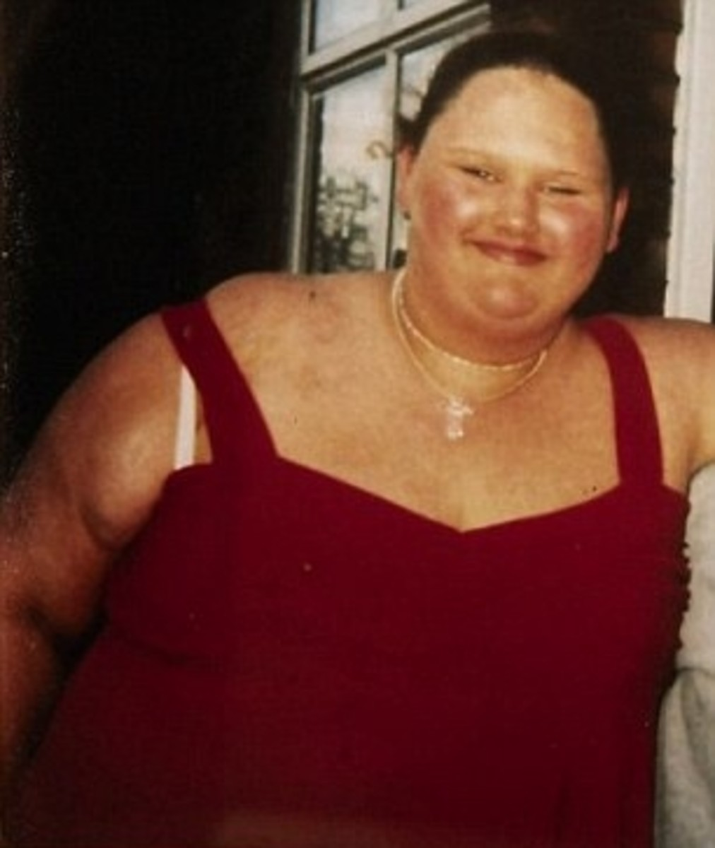 Malissa Jones as the Fattest Teenager in Britain