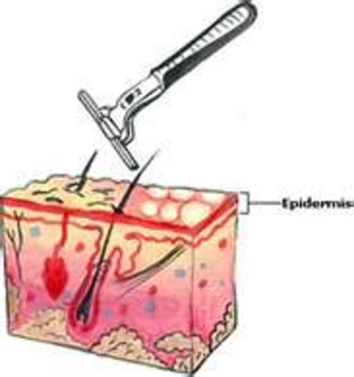 how-to-prevent-razor-burn-sooth-pain-bumps
