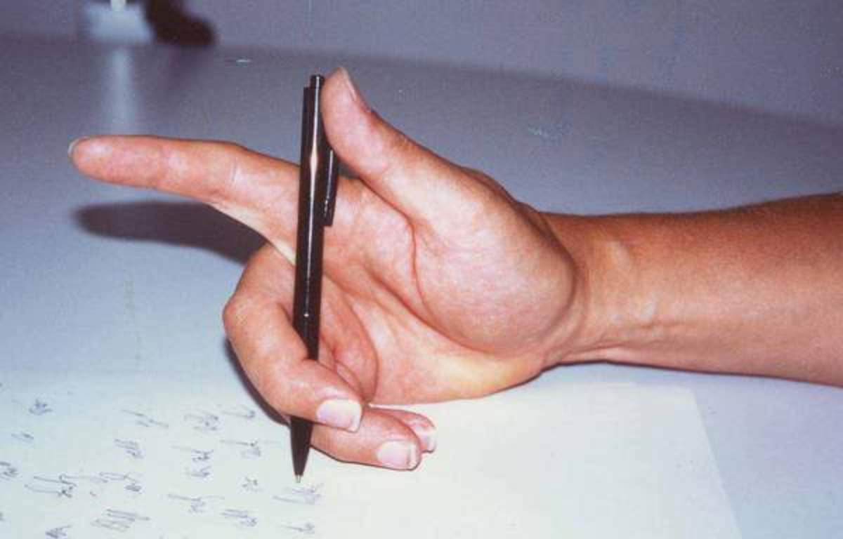 Task Specific Focal Dystonia (Hand Cramps) - Dealing with Disability Discrimination