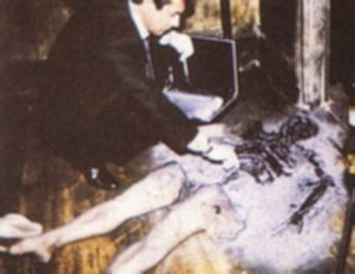 The partial burning of the body is typical of cases of Spontaneous Human Combustion
