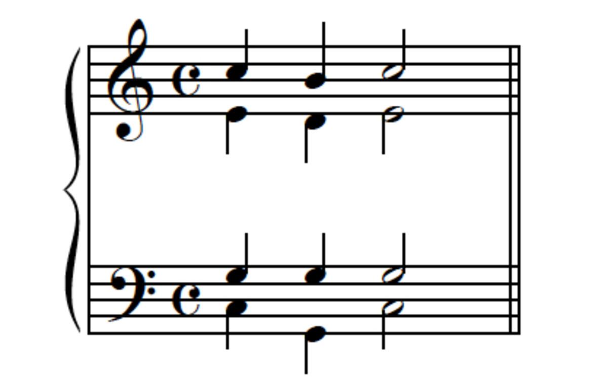 "Example 6--I-V-I, ""neighbor note"" version."