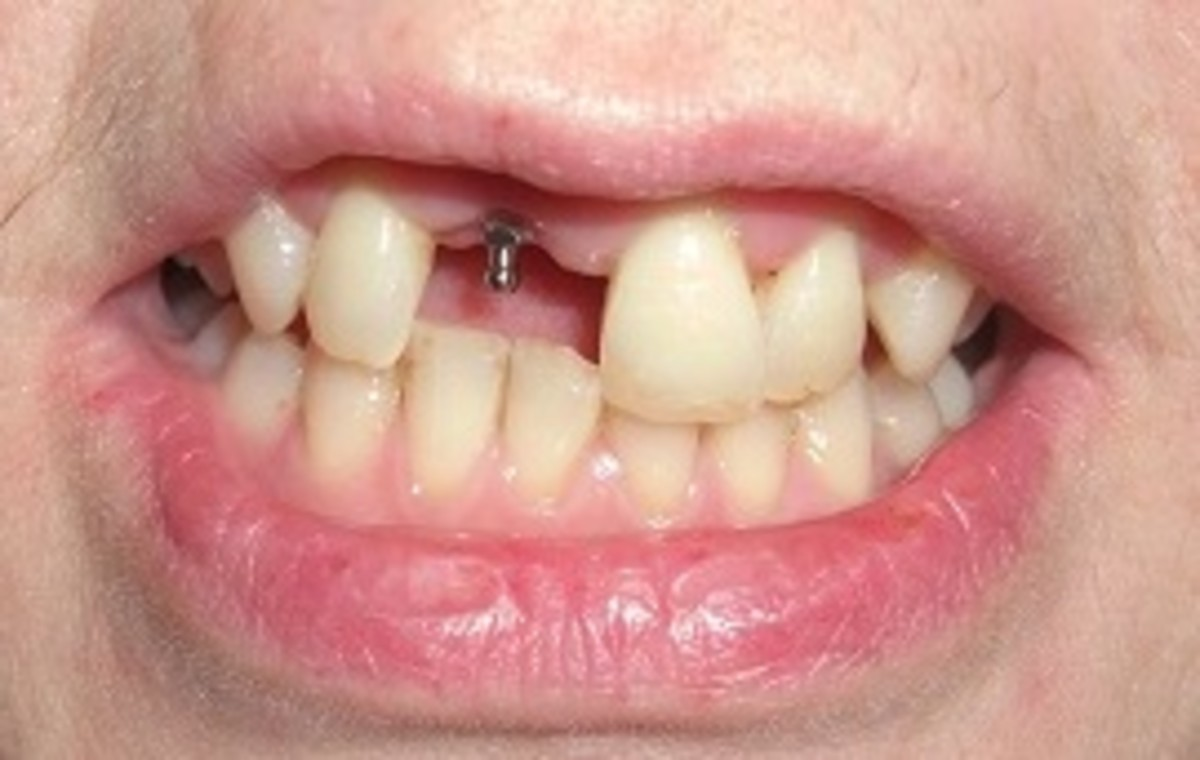 After the dental Implant had been fitted