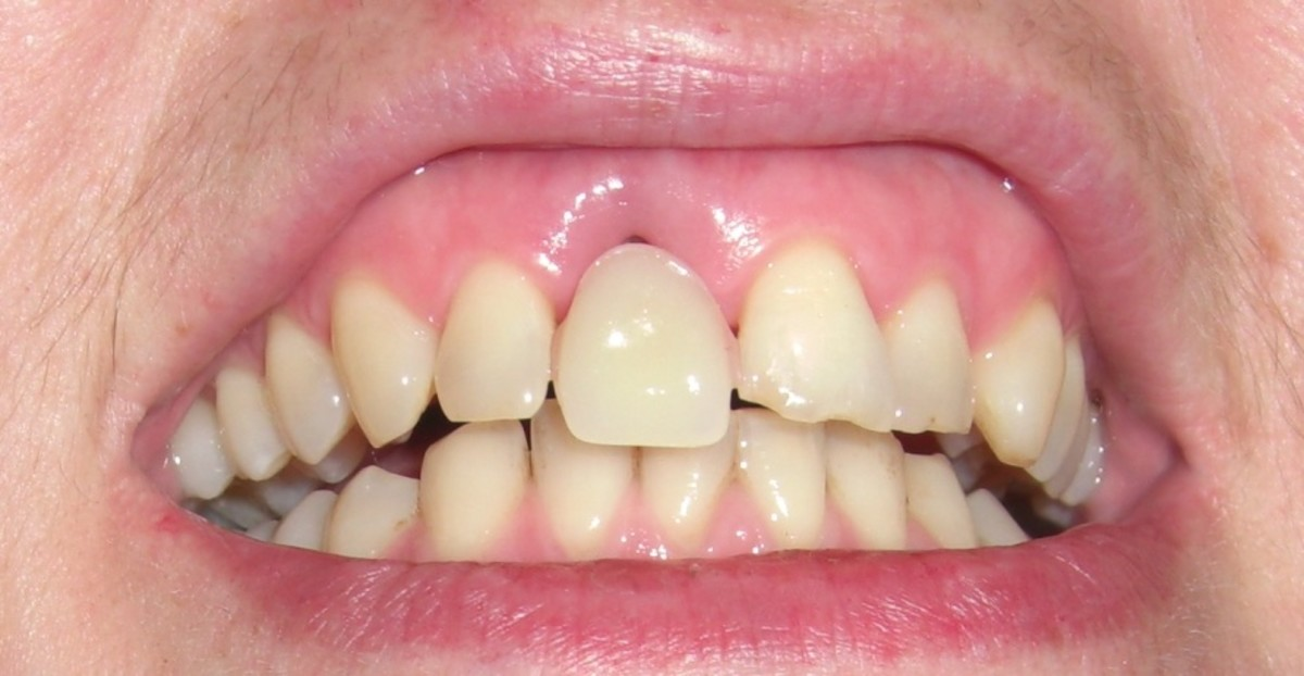 The temporary denture prior to filing