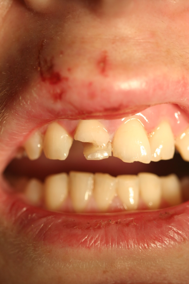 The damaged tooth
