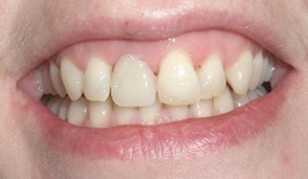 Denture after being filed down and the chips on the other upper incisor filled