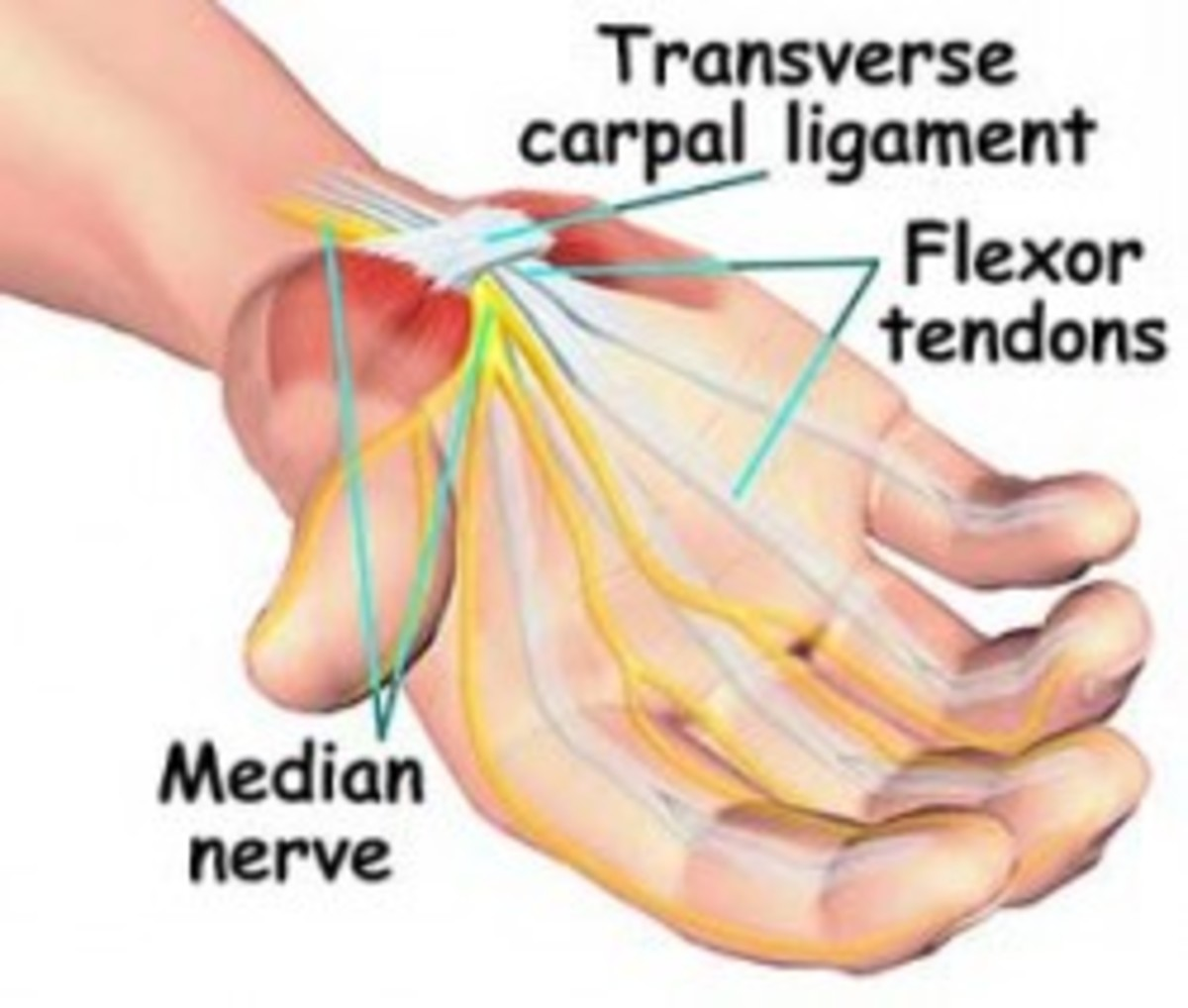 Diagram of Median nerve (Carpal tunnel)