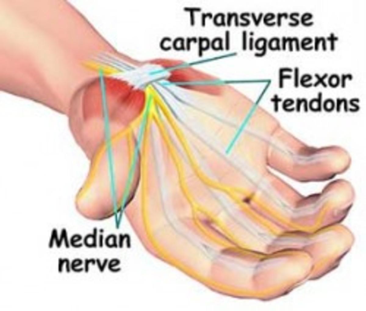 Diagram of Median nerve (Carpal tunnel)