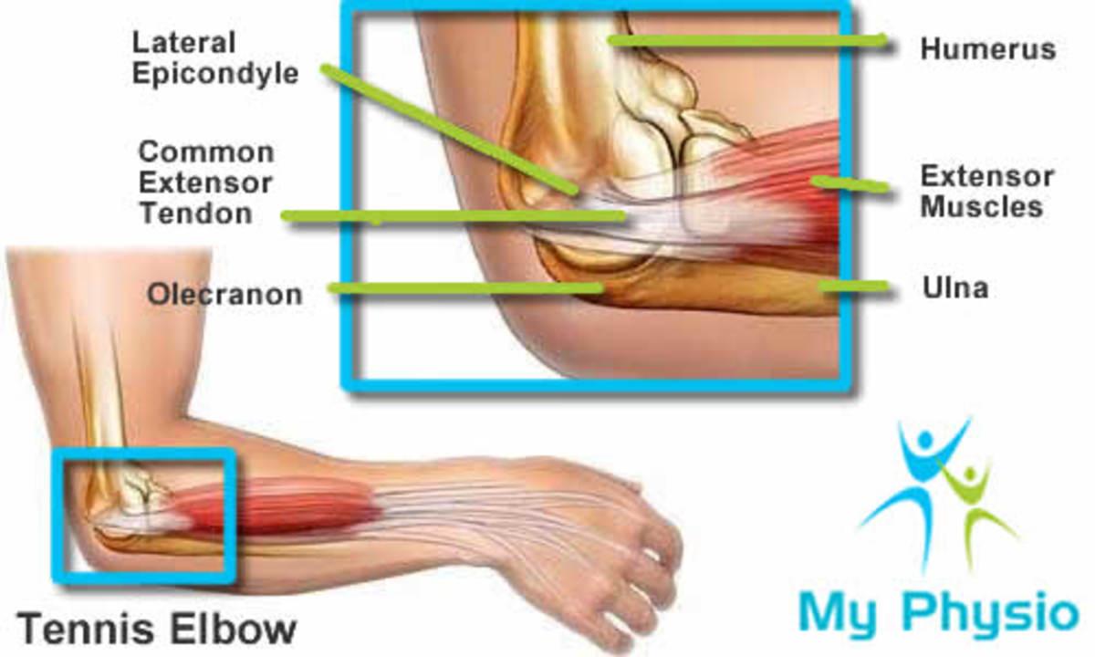 Diagram of lateral epicondylitis (Tennis Elbow)