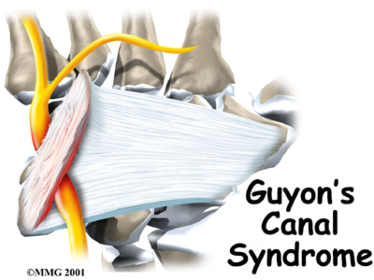 Diagram of posterior tibial nerve (Guyon's Canal)