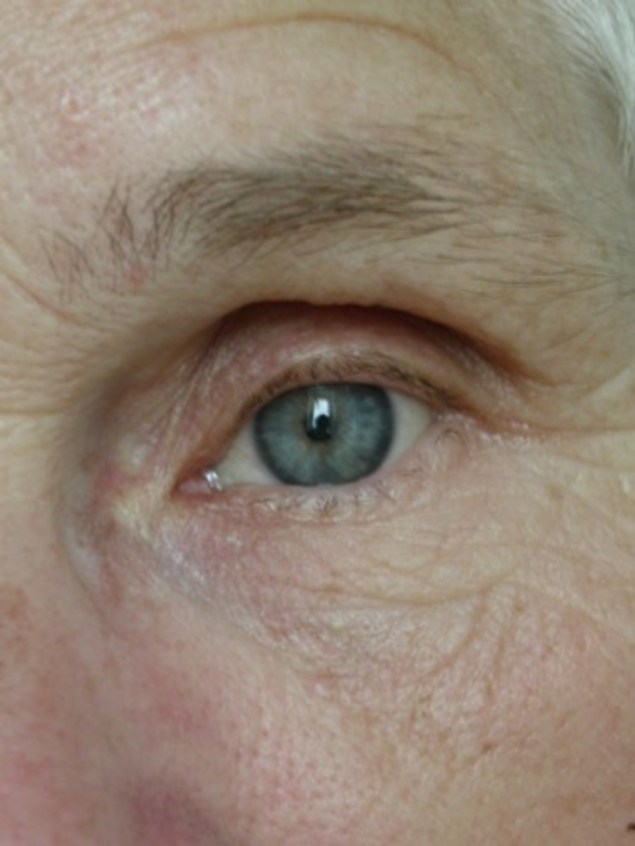 This picture of the wrinkles round the eye of a 58 year old woman show how lines develop in the very delicate skin of this area of the face.