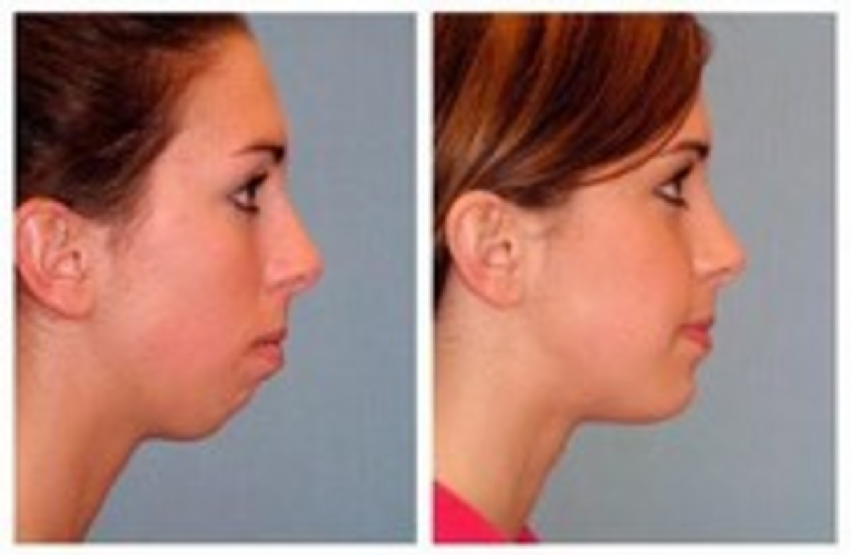 A receding chin is a good reason for an implant
