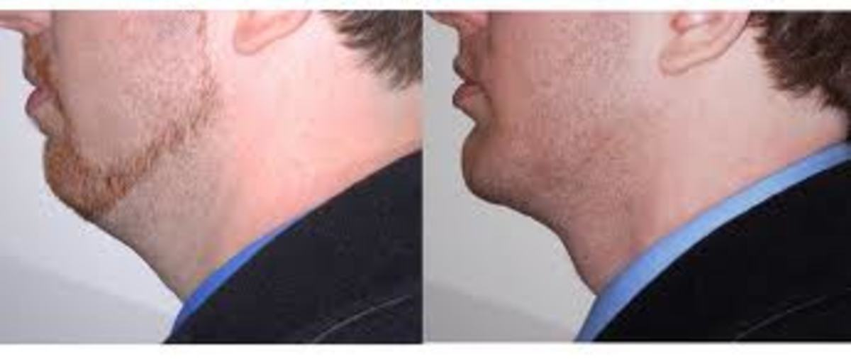 A prominent chin is eqated as a 'strong' chin