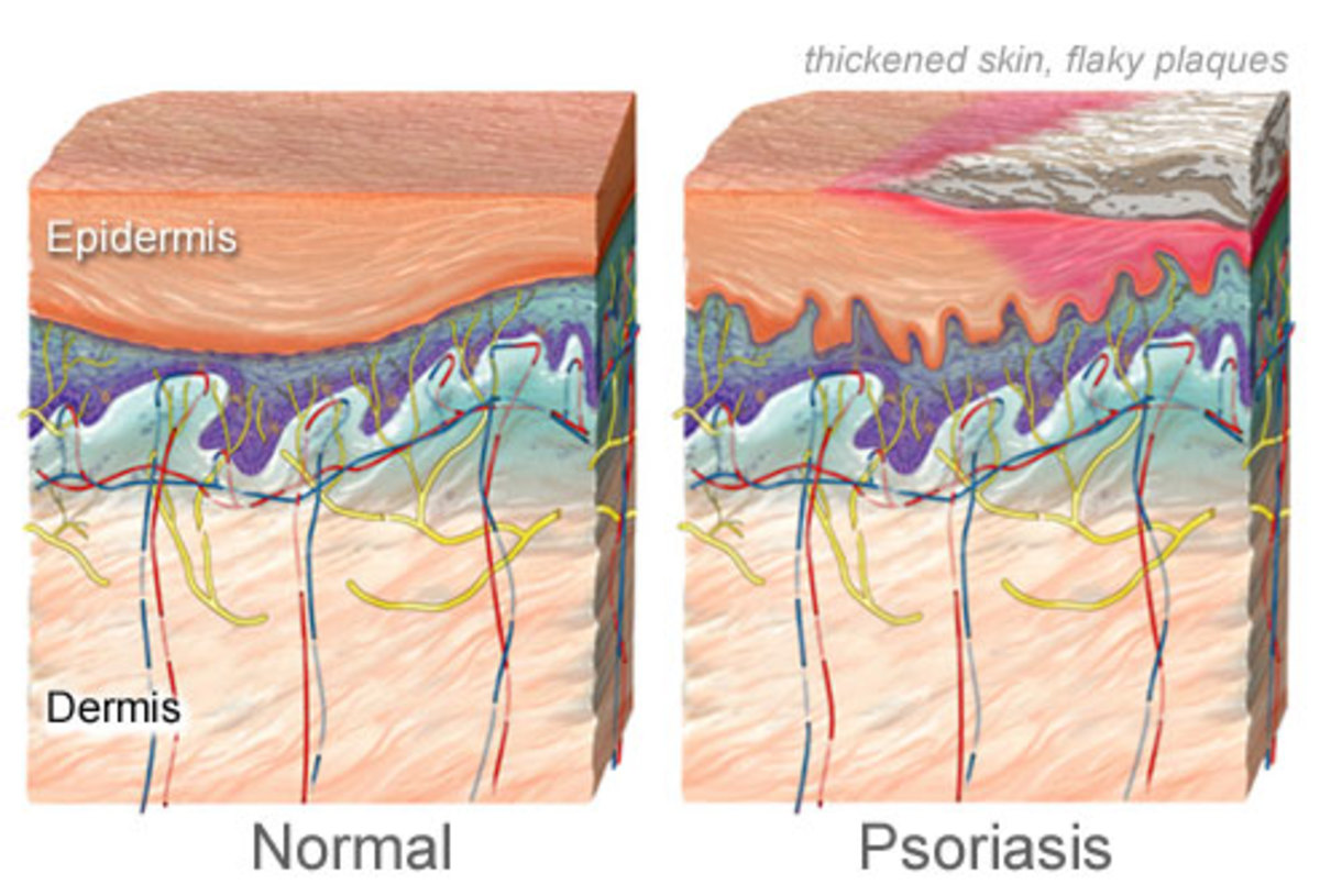 Cross section of skin condition Psoriasis