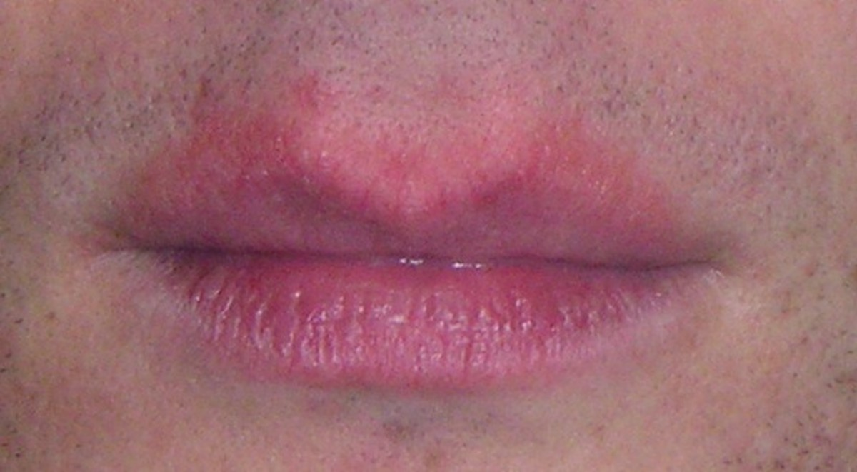 Redness (erythema) around the lips.