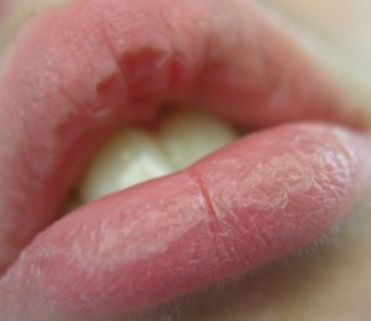 How to Care for Dry, Cracked, Chapped Lips