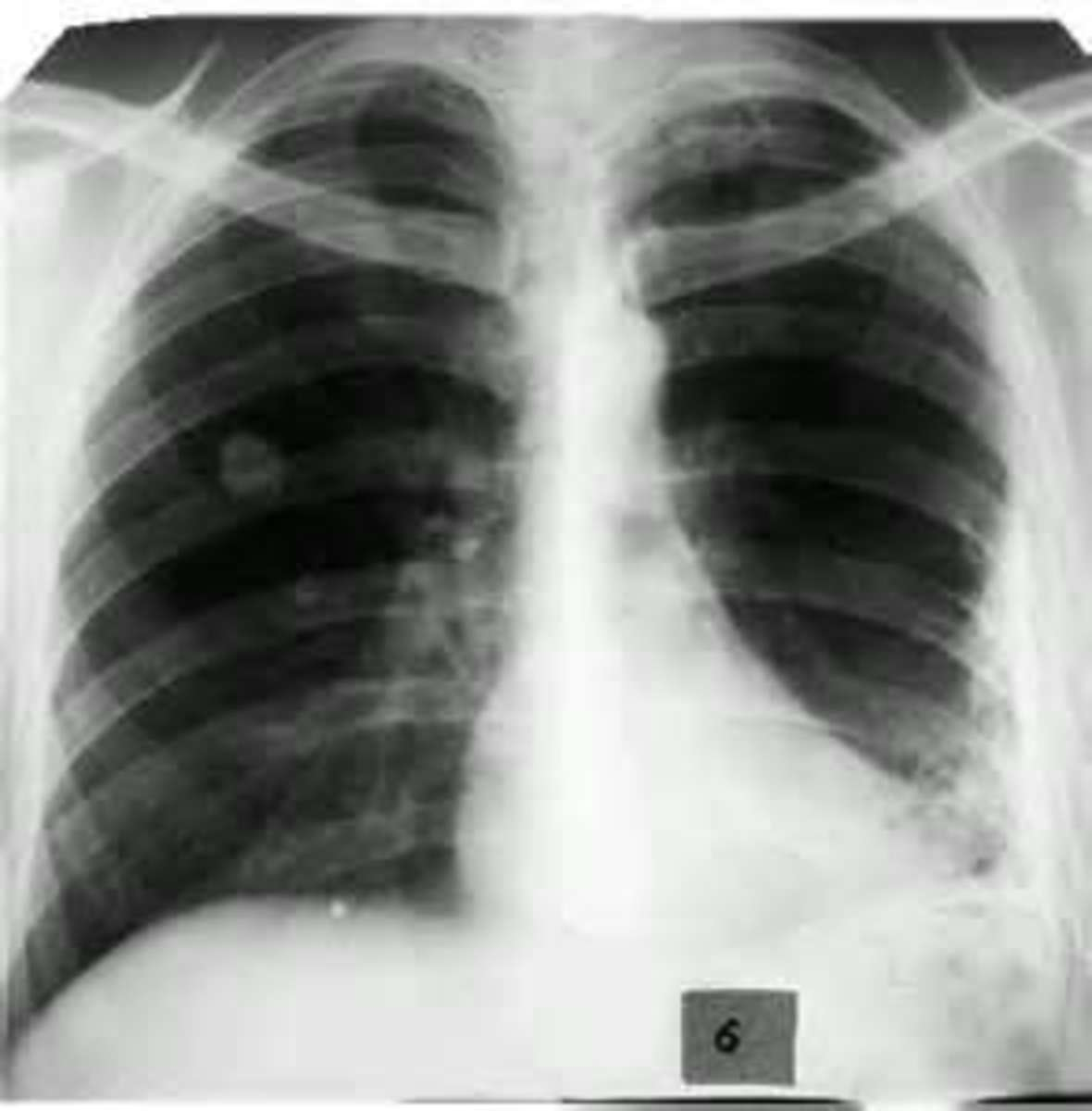 An X-ray of an individual suffering from pleurisy or the inflammation of the lining of the lungs.