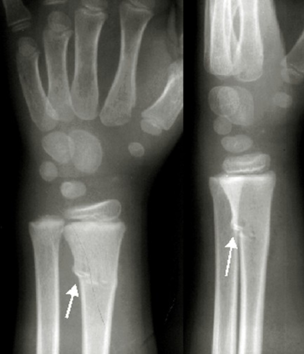 greenstick fracture - pictures, treatment, symptoms, healing time, Human Body