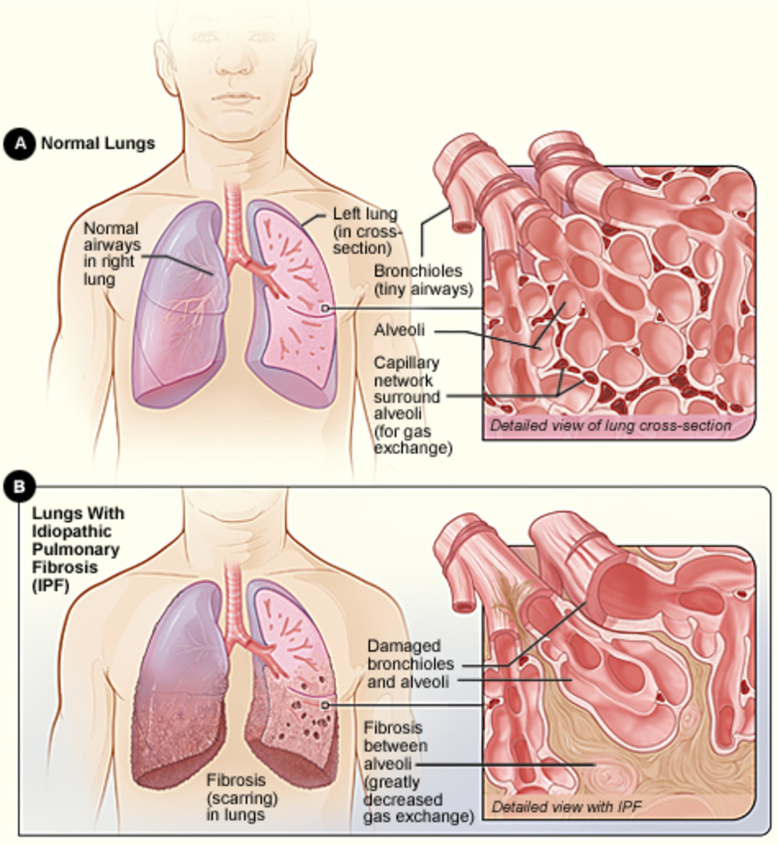 fibrosis-definition-causes-and-treatment