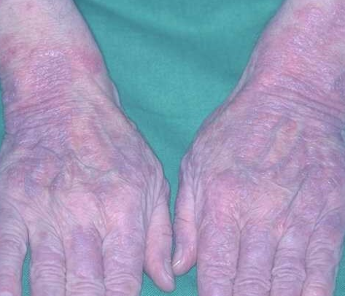 Lupus Rash – Pictures, Life Expectancy, Contagious, Symptoms, Treatment