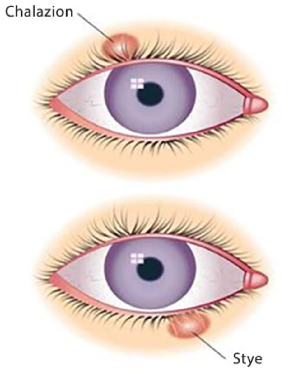 What Is the Difference Between a Chalazion and a Stye