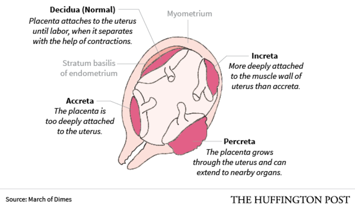 Placenta accreta, increta and percreta