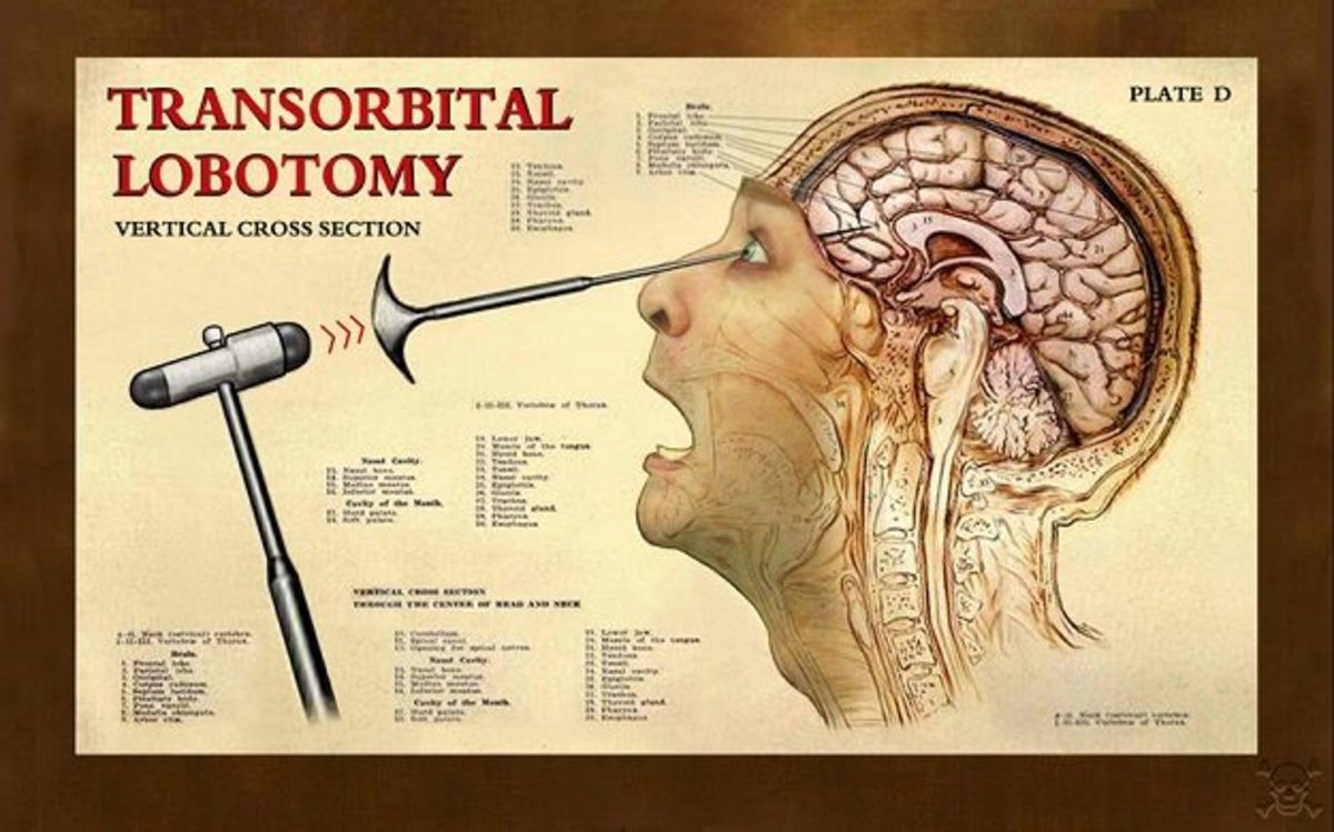 Ice- Pick Lobotomy and A Hole in the Head