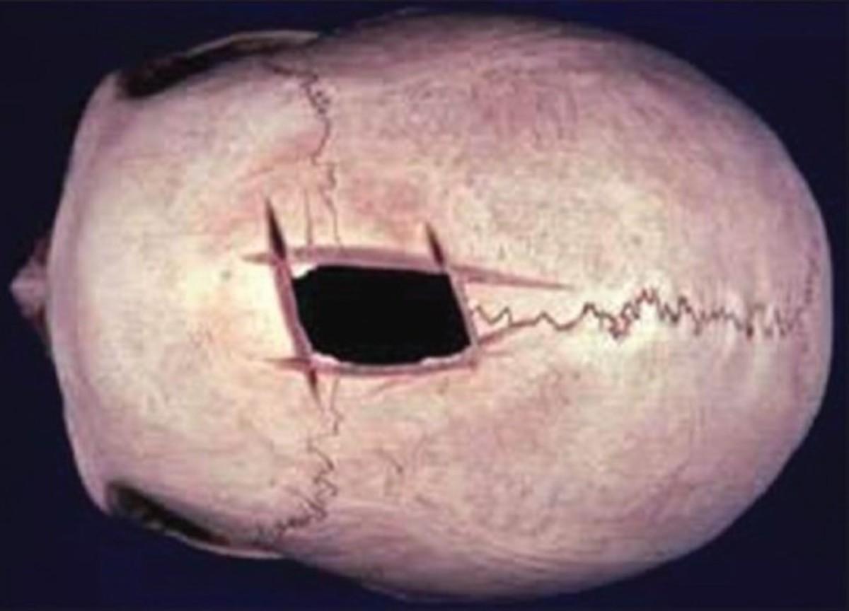 Skull with trepanning hole