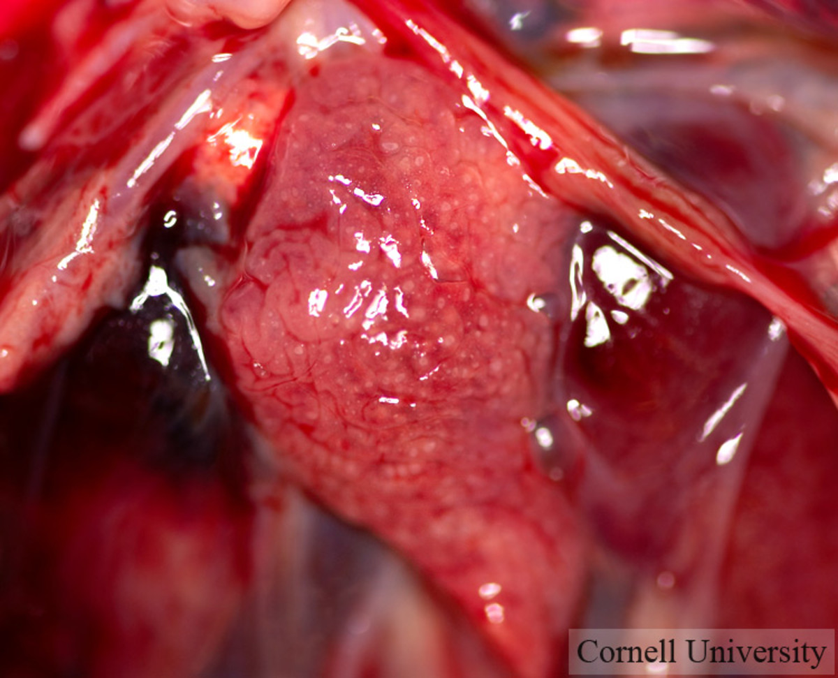 Laparoscopic view of normal ovary