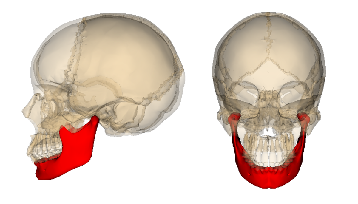"""They """"broke"""" the mandible on both sides and extended it by inserting pieces of bone taken from my right hip."""